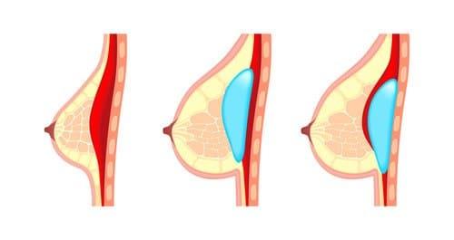 Drei verschiedene Methoden um ein Brustimplantat einzusetzen - Brustvergrößerung München