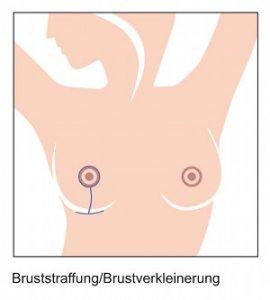 Bruststraffung-und-brustverkleinerung.jpg