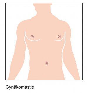 Gynaekomastie-Brustkorrektur-beim-Mann